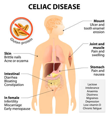 sintoma: A doença celíaca ou doença celíaca ou doença celíaca. Sinais e sintomas. Silhueta humana com órgãos internos realçados