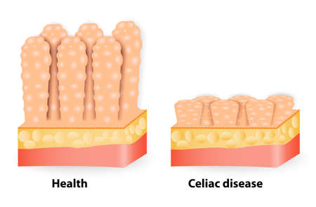 from small bowel: Coeliac disease or celiac disease. small bowel showing coeliac disease manifested by blunting of villi.