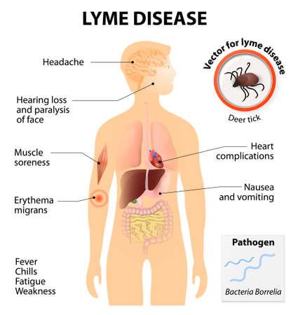infectious: La enfermedad de Lyme o borreliosis de Lyme. Es una enfermedad infecciosa transmitida por garrapatas que pueden afectar a perros y personas. Signos y s�ntomas. Silueta humana con los �rganos internos resaltados