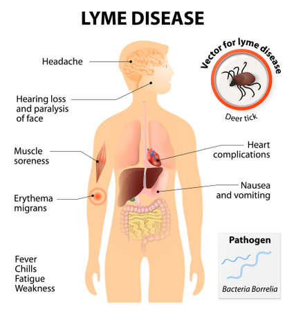 Lyme disease or Lyme borreliosis. is an infectious illness transmitted by ticks that can affect dogs and people. Signs and symptoms.  Human silhouette with highlighted internal organs Illustration