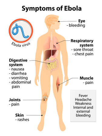 virus: Ebola virus disease. Signs and symptoms.  Human silhouette with highlighted internal organs Illustration