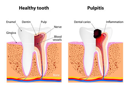 Pulpitis and Healthy tooth Stock Vector - 42481360