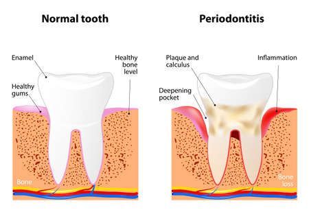Periodontitis is a inflammatory diseases affecting the periodontium, the tissues that surround and support the teeth Vectores