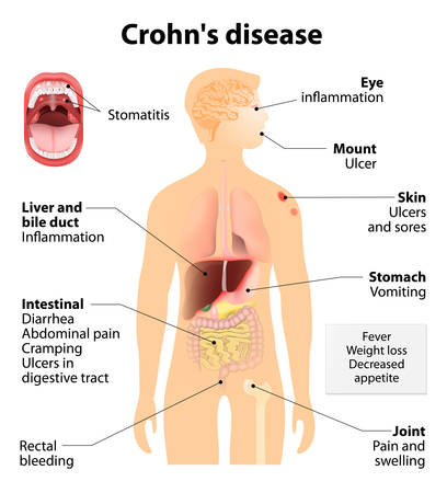 inflammatory: Crohns disease or Crohn syndrome and regional enteritis. Signs and symptoms.  Human silhouette with highlighted internal organs