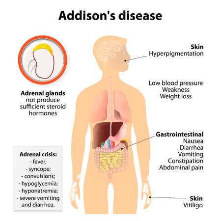 organ system: Addisons disease or Addison disease or chronic adrenal insufficiency or hypocortisolism and hypoadrenalism. Signs and symptoms.  Human silhouette with highlighted internal organs