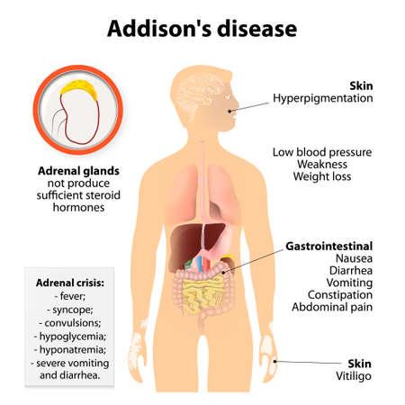 Enfermedad de Addison o enfermedad de Addison o insuficiencia suprarrenal crónica o hipocortisolismo y hipoadrenalismo. Signos y síntomas. Silueta humana con los órganos internos resaltados