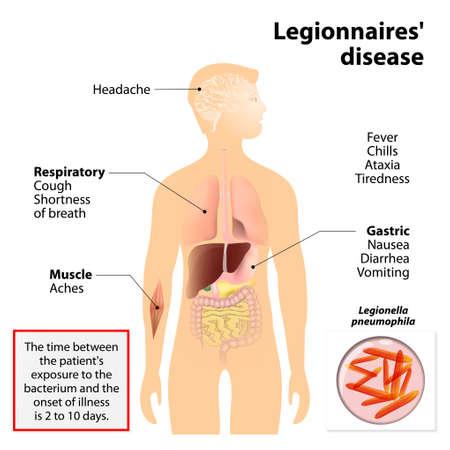 La enfermedad del legionario o legionelosis o fiebre Legión. Los signos y síntomas es una forma de neumonía atípica. Silueta humana con los órganos internos resaltados