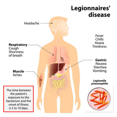 Legionnaires disease or legionellosis or Legion fever. Signs and symptoms  is a form of atypical pneumonia.  Human silhouette with highlighted internal organs