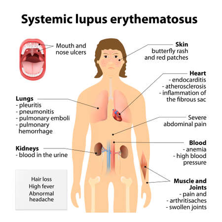 全身性エリテマトーデスの erythematosu。SLE ループスは、全身性自己免疫疾患。症状・兆候。強調表示された内臓と人間のシルエット  イラスト・ベクター素材