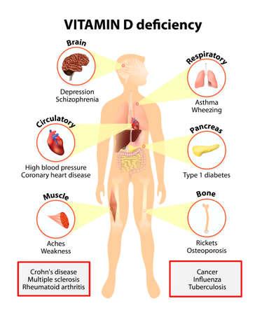 osteoporosis: La deficiencia de vitamina D. síntomas y enfermedades causadas por insuficiencia de vitamina D. Los síntomas y signos. Silueta humana con los órganos internos resaltados Vectores