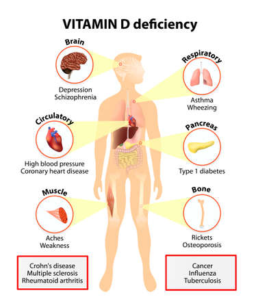 vitamins: Vitamin D deficiency. symptoms and diseases caused by insufficient vitamin D. Symptoms & Signs. Human silhouette with highlighted internal organs