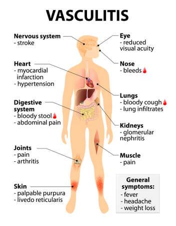 vasos sanguineos: Vasculitis Los signos y s�ntomas. trastornos que destruyen los vasos sangu�neos por la inflamaci�n. Silueta humana con los �rganos internos resaltados. Vectores