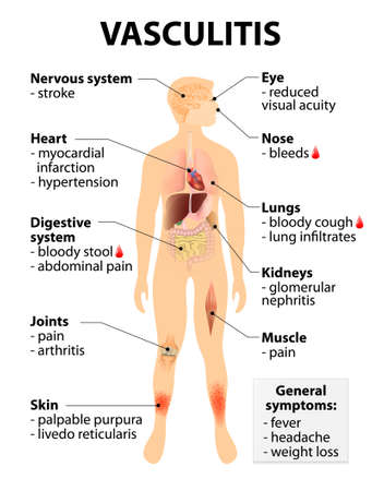 schematic diagram: Vasculitis Signs and symptoms. disorders that destroy blood vessels by inflammation. Human silhouette with highlighted internal organs.