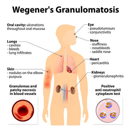 coagulation: Granulomatosis with polyangiitis (GPA) or Wegeners granulomatosis (WG) is an disease, characterized by inflammation of the blood vessels (vasculitis). Autoimmune diseases. Signs and symptoms. Human silhouette with highlighted internal organs. Illustration