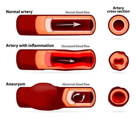 scarring: Arteria normale, arteria infiammata o restringimento e l'arteria con un aneurisma. sezione trasversale Vettoriali