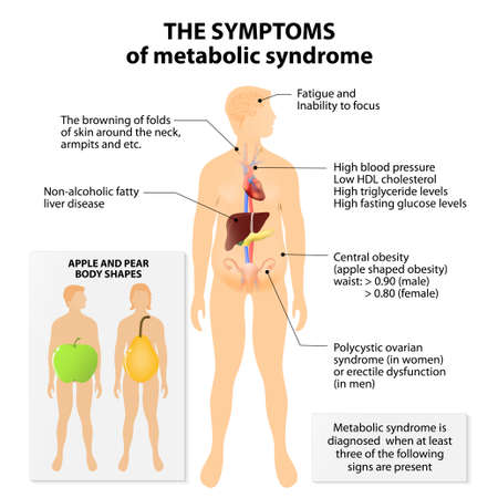 Metabolic syndrome. Signs and symptoms. Apple and pear body shapes. Metabolic syndrome is also known as metabolic syndrome X, cardiometabolic syndrome, syndrome X, insulin resistance syndrome or Reaven's syndrome. Metabolic syndrome and prediabetes may be 일러스트
