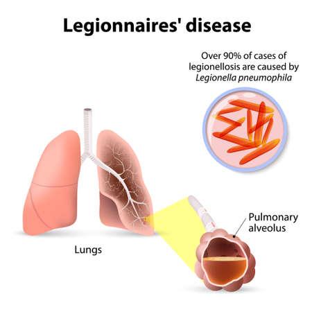personas enfermas: Enfermedad o legionelosis legionario, fiebre Legi�n es una forma de neumon�a at�pica. Legionella pneumophila Vectores