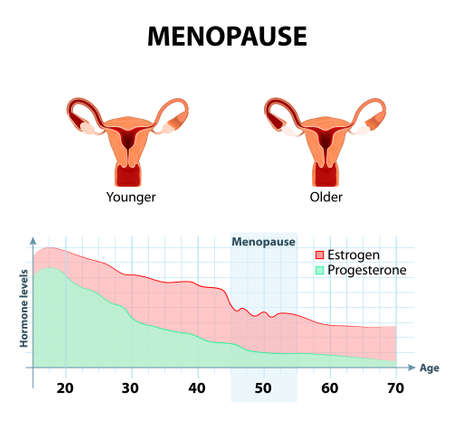 fluctuation of hormones that occurs during menopause. Menopause as a stage in women's lives when their bodies lose the ability to produce enough hormones that keep the body balanced and healthy. Younger and older women uterus