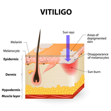 skin structure: Vitiligo. Is a skin condition characterized by portions of the skin losing their pigment. It occurs when skin pigment cells (melanocytes) die or are unable to function. Illustration