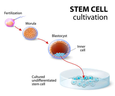 human: Stem cell cultivation. In Vitro Fertilization of the egg by a sperm outside the body. After several days they develop into undifferentiated stem cells. Illustration