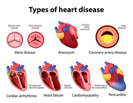 cardiopatia: doença valvar, aneurisma, doença arterial coronariana, arritmia cardíaca, insuficiência cardíaca, cardiomiopatia e pericardite