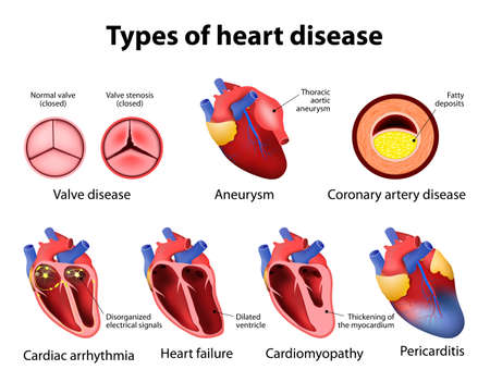 illness: heart disease: valve disease, aneurysm, coronary artery disease, cardiac arrhythmia, heart failture, cardiomyopathy and pericarditis Illustration
