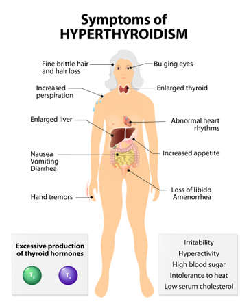 Hyperthyroidism or over active thyroid. hyperthyreosis. Signs and Symptoms thyroid dysfunction Illustration
