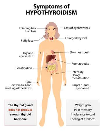 anatomie humaine: L'hypothyroïdie ou basse thyroïde et l'hypothyroïdie. trouble fréquent du système endocrinien dans laquelle la glande thyroïde ne produit pas assez d'hormones thyroïdiennes. Signes et symptômes dysfonctionnement de la thyroïde Illustration