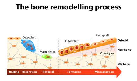 osteoporosis: El proceso de remodelación ósea implica las siguientes etapas: resorción, inversión, formación, mineralización y de descanso. En un cuerpo sano, osteoclastos y osteoblastos trabajan juntos para mantener el equilibrio entre la pérdida ósea y la formación ósea. Vectores