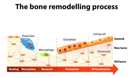 macrophage: The bone remodeling process involves the following steps: resorption, reversal, formation, mineralization and resting. In a healthy body, osteoclasts and osteoblasts work together to maintain the balance between bone loss and bone formation.
