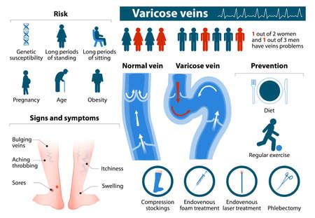 Problemi di salute vene varicose.