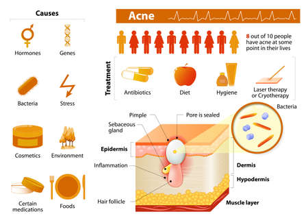 arrugas: Acn�. problemas de salud. medicina en infograf�a m�dicos. elementos e iconos para el dise�o. Capas de la piel Vectores