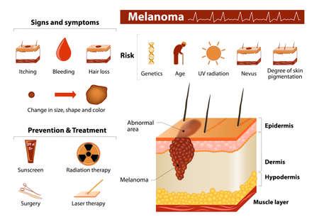 Melanoma. Skin cancer infographics.  向量圖像