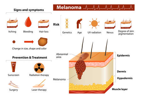 itching: Melanoma. Skin cancer infographics.  Illustration