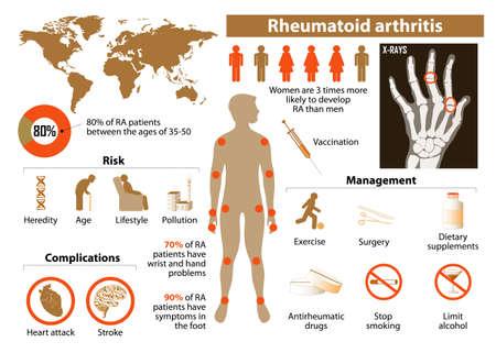 류마티스 관절염. 의료 인포 그래픽 아이콘 및 기타 요소 설정