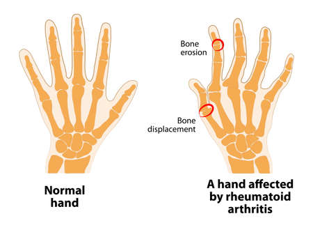 Normal hand and hand affected by rheumatoid arthritis.