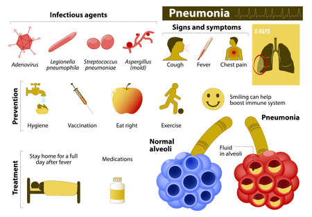pneumonia: Pneumonia. Medical Infographic set with icons and other elements. medical symbols for design Illustration