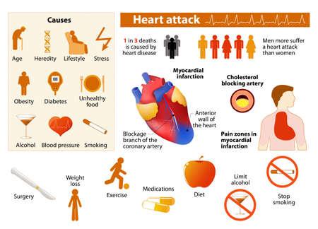낮은 색상 스타일의 심장 발작 infographics. 격리 된 아이콘 및 개체 심장 질환 요인입니다. 의료 Infographic 요소와 디자인에 대 한 기호를 설정합니다. 일러스트