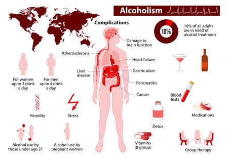 alcoholismo: Infografía Alcoholismo. Algunos de los posibles efectos a largo plazo del alcohol. Médico Infografía conjunto los elementos y símbolos para el diseño.
