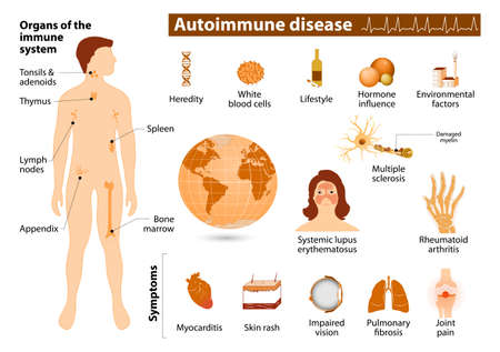 erythematosus: Autoimmune disease infographic. Medical Infographic set elements and symbols for design.