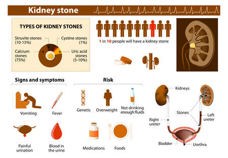 set in stone: Kidney stone. Medical Infographic set elements and symbols for design.