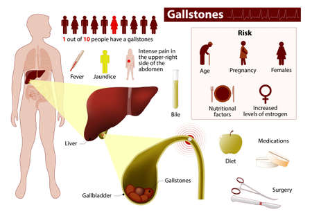 digestive disorder: gallstones or cholelith. Medical Infographic set elements and symbols for design.