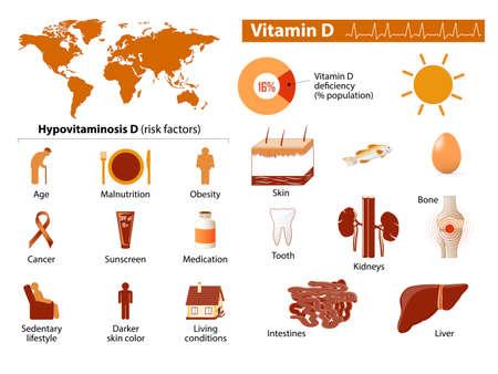sedentario: La vitamina D infografía Médico. Establecer los elementos y símbolos para el diseño.
