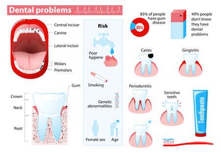 Los problemas dentales y las enfermedades dentales. Infografía Médico. Establecer los elementos y símbolos para el diseño.