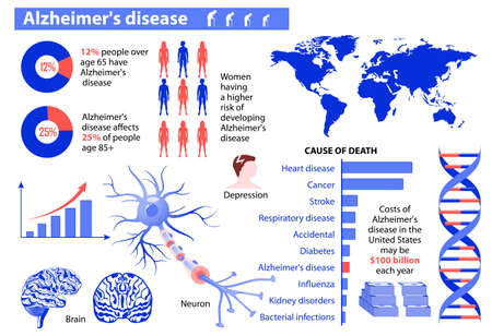 amnesia: Alzheimers disease. Medical infographic. Set elements and symbols for design.