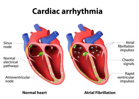 heartbeat: Cardiac arrhythmia. cardiac dysrhythmia or irregular heartbeat. Medical illustration Illustration