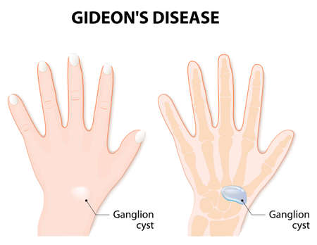 ganglion: Ganglion cyst also known as synovial cyst or a Gideons Disease, or a Bible Cyst, or a Bible Bump