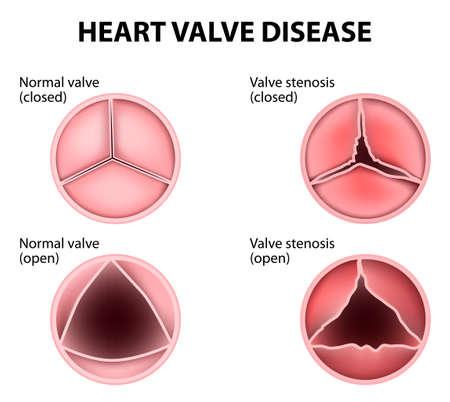 cardiopatia valvolare Vettoriali