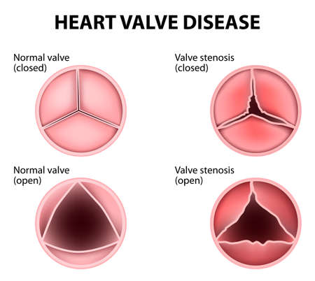 enfermedades del corazon: Enfermedad cardíaca valvular