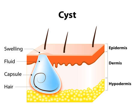 sebaceous: Cyst. A cyst is an epithelial-lined cavity containing liquid or other material